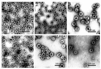 Sárgaság giardia, Giardiasis (giardiázis): kutyára, emberre egyaránt fertőző betegség - Egészség